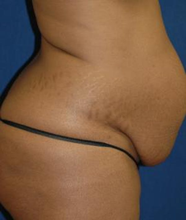 Tummy Tuck (Abdominoplasty) Gallery - Patient 4861895 - Image 3