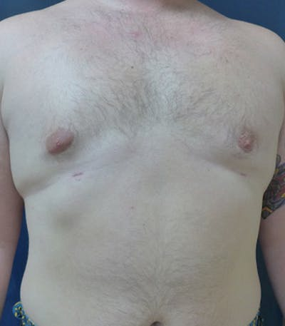 Male Subcutaneous Mastectomy (Gynecomastia) Gallery - Patient 4861896 - Image 2