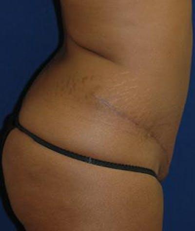 Tummy Tuck (Abdominoplasty) Gallery - Patient 4861895 - Image 4