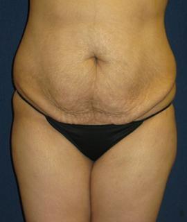 Tummy Tuck (Abdominoplasty) Gallery - Patient 4861897 - Image 1