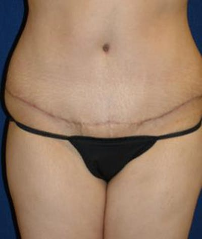 Tummy Tuck (Abdominoplasty) Gallery - Patient 4861897 - Image 2