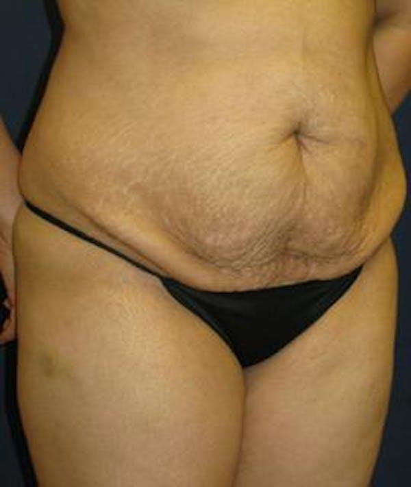 Tummy Tuck (Abdominoplasty) Gallery - Patient 4861897 - Image 3