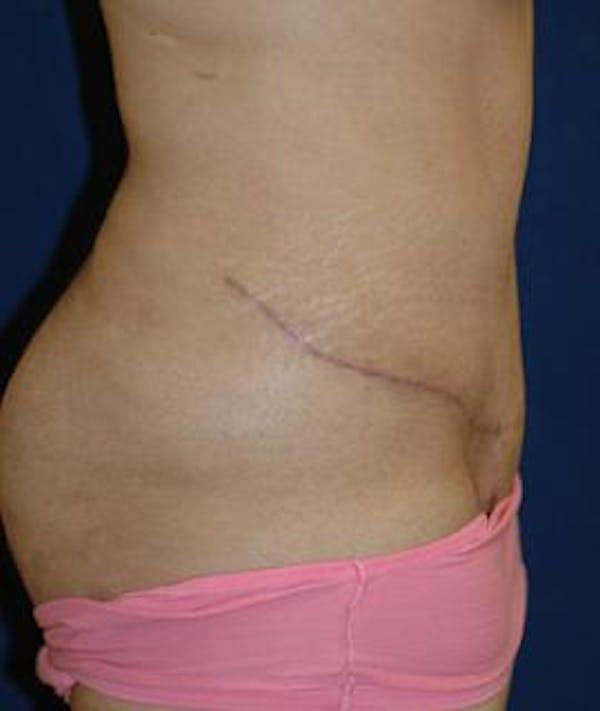 Tummy Tuck (Abdominoplasty) Gallery - Patient 4861897 - Image 4