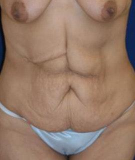 Tummy Tuck (Abdominoplasty) Gallery - Patient 4861898 - Image 1