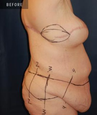 Tummy Tuck (Abdominoplasty) Gallery - Patient 4861899 - Image 1