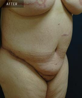 Tummy Tuck (Abdominoplasty) Gallery - Patient 4861899 - Image 2