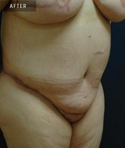 Tummy Tuck (Abdominoplasty) Gallery - Patient 4861899 - Image 2