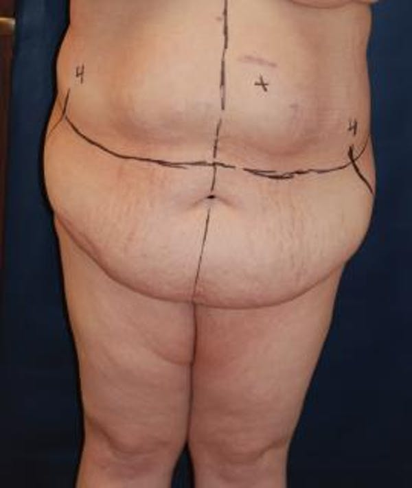 Tummy Tuck (Abdominoplasty) Gallery - Patient 4861899 - Image 3