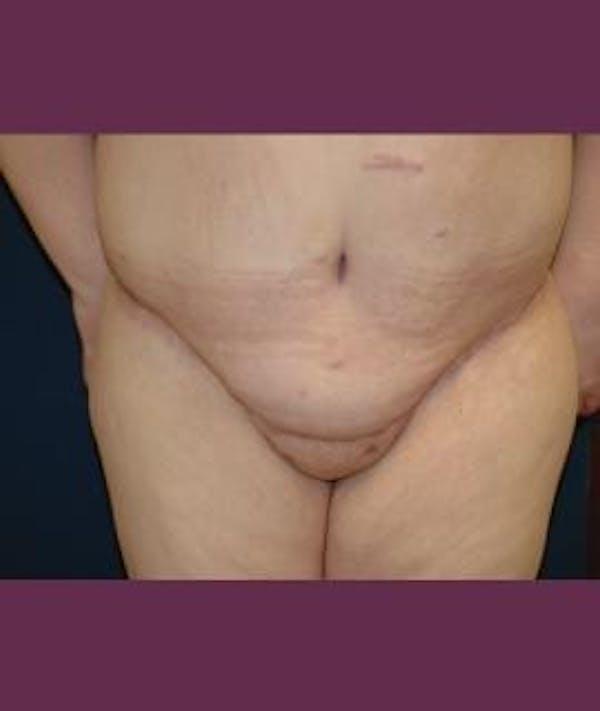 Tummy Tuck (Abdominoplasty) Gallery - Patient 4861899 - Image 4