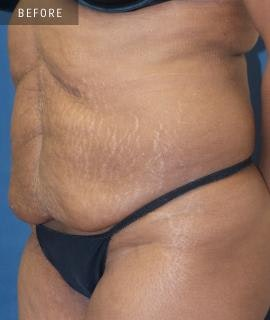 Tummy Tuck (Abdominoplasty) Gallery - Patient 4861901 - Image 1
