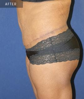 Tummy Tuck (Abdominoplasty) Gallery - Patient 4861901 - Image 2