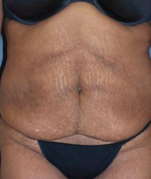 Tummy Tuck (Abdominoplasty) Gallery - Patient 4861901 - Image 3