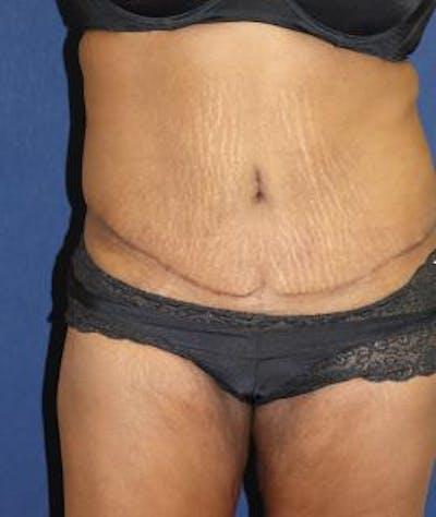 Tummy Tuck (Abdominoplasty) Gallery - Patient 4861901 - Image 4