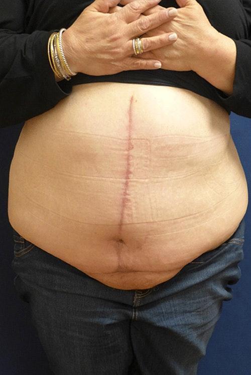 Tummy Tuck (Abdominoplasty) Gallery - Patient 4861904 - Image 2