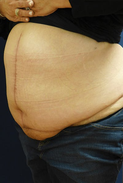 Tummy Tuck (Abdominoplasty) Gallery - Patient 4861904 - Image 4