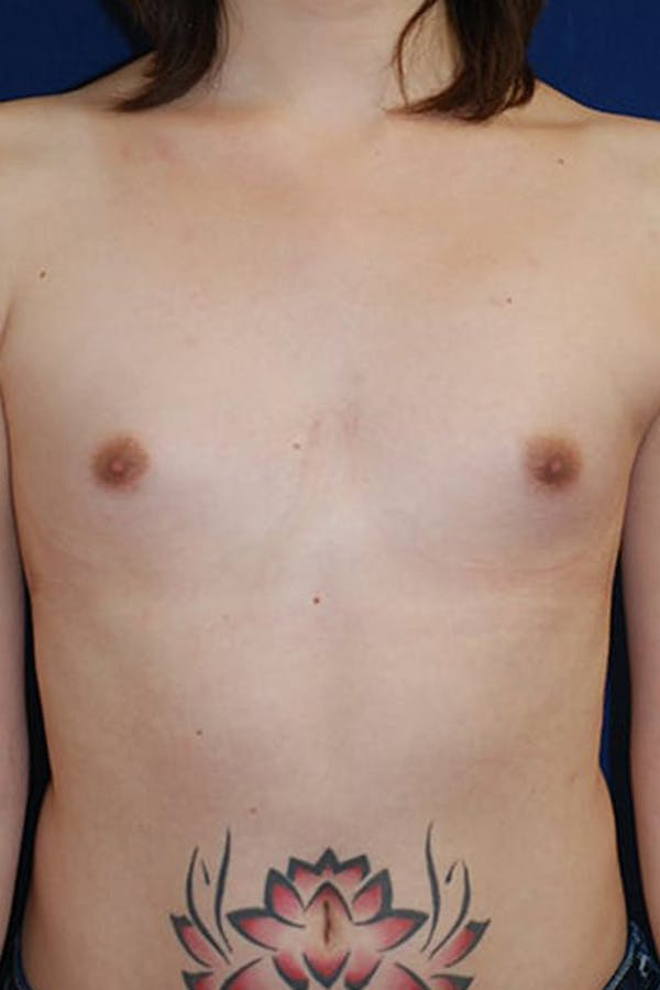 Feminizing Surgery Gallery - Patient 4861907 - Image 1