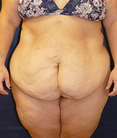 Tummy Tuck (Abdominoplasty) Gallery - Patient 4861906 - Image 1
