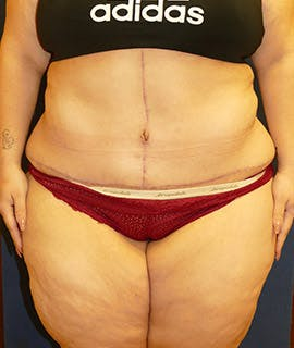 Tummy Tuck (Abdominoplasty) Gallery - Patient 4861906 - Image 2