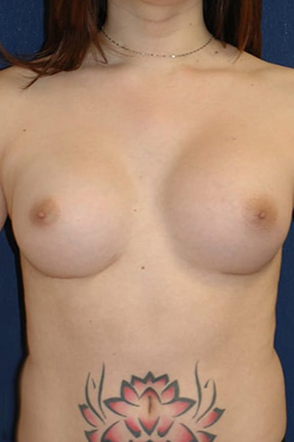 Feminizing Surgery Gallery - Patient 4861907 - Image 2