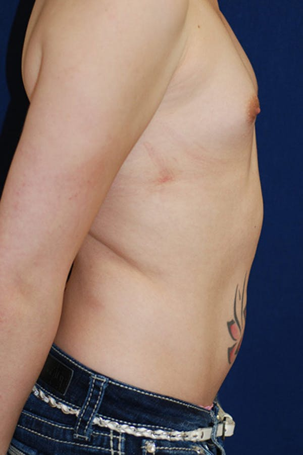 Feminizing Surgery Gallery - Patient 4861907 - Image 3