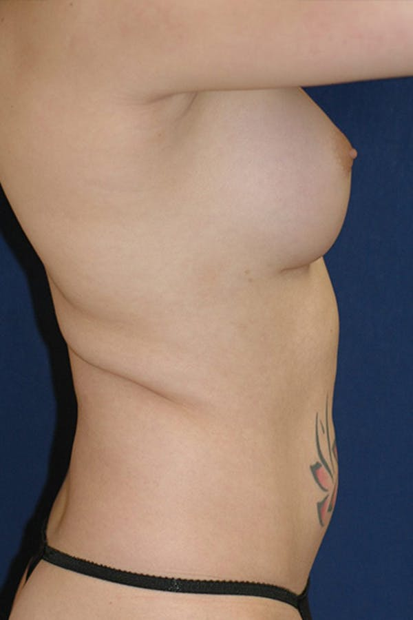 Feminizing Surgery Gallery - Patient 4861907 - Image 4
