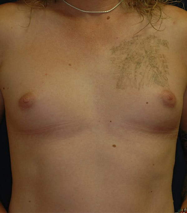Feminizing Surgery Gallery - Patient 4861908 - Image 1