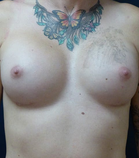 Feminizing Surgery Gallery - Patient 4861908 - Image 2