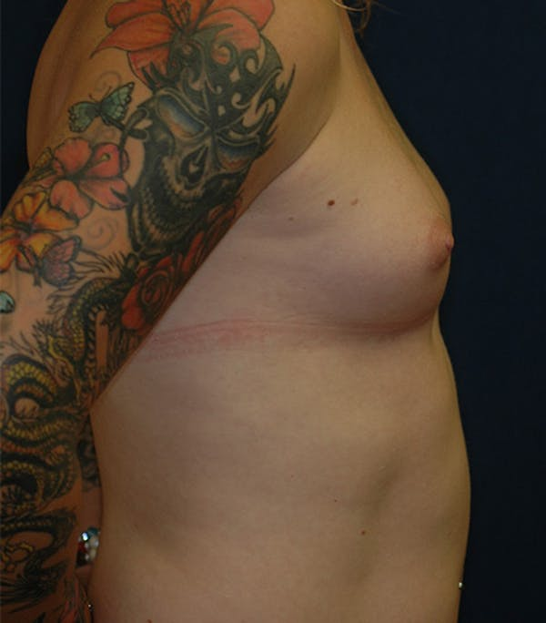 Feminizing Surgery Gallery - Patient 4861908 - Image 3