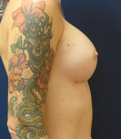 Feminizing Surgery Gallery - Patient 4861908 - Image 4