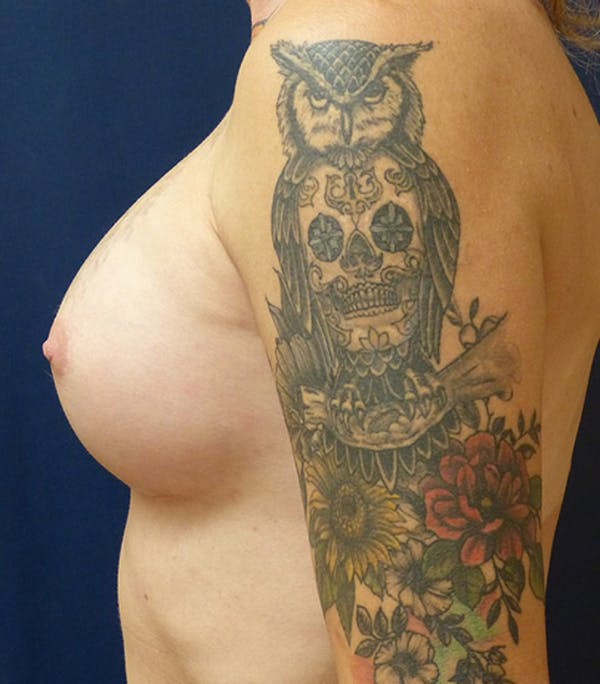 Feminizing Surgery Gallery - Patient 4861908 - Image 6