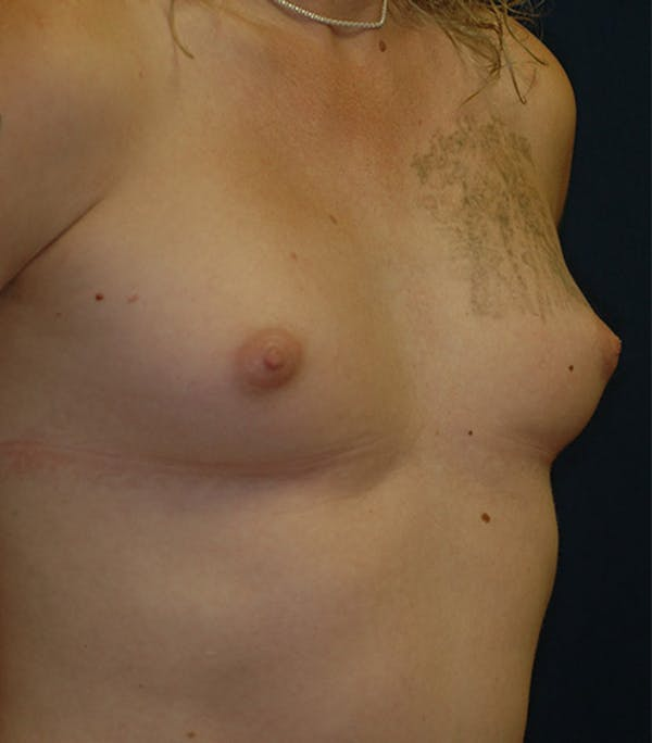Feminizing Surgery Gallery - Patient 4861908 - Image 7
