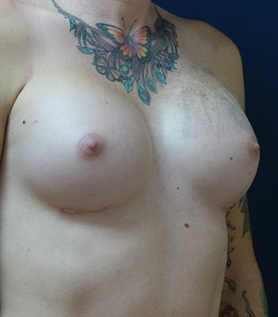 Feminizing Surgery Gallery - Patient 4861908 - Image 8