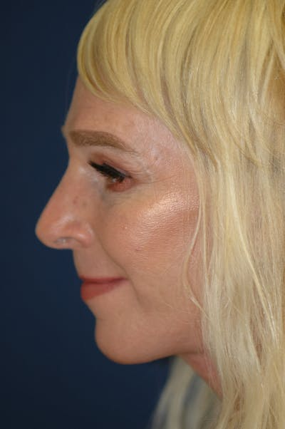 Feminizing Surgery Gallery - Patient 4861910 - Image 4