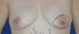 Breast Reconstruction Gallery - Patient 4861991 - Image 1