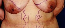 Breast Reconstruction Gallery - Patient 4861992 - Image 1