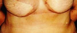 Breast Reconstruction Gallery - Patient 4861992 - Image 2
