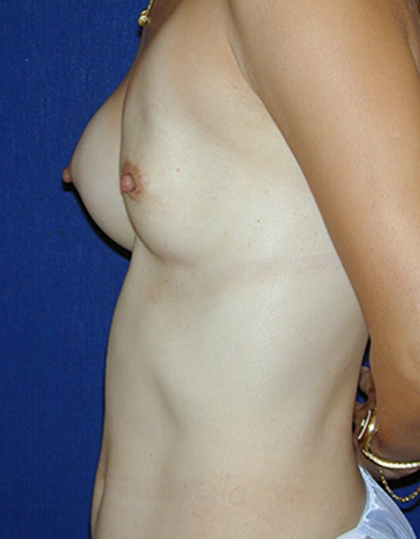 Breast Reconstruction Gallery - Patient 4861996 - Image 3