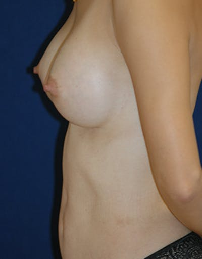 Breast Reconstruction Gallery - Patient 4861996 - Image 4