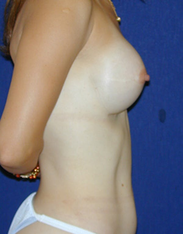 Breast Reconstruction Gallery - Patient 4861996 - Image 5