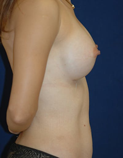Breast Reconstruction Gallery - Patient 4861996 - Image 6