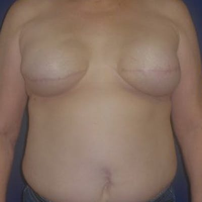 Breast Reconstruction Gallery - Patient 4862063 - Image 1