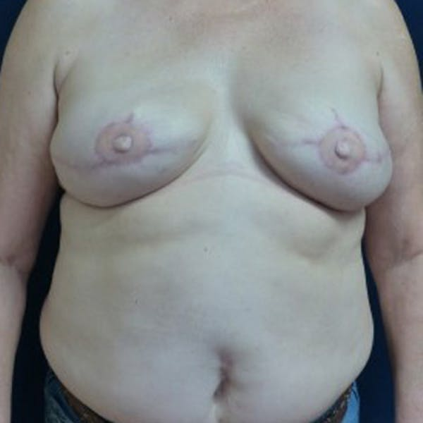 Before & After Houston Breast Reconstruction