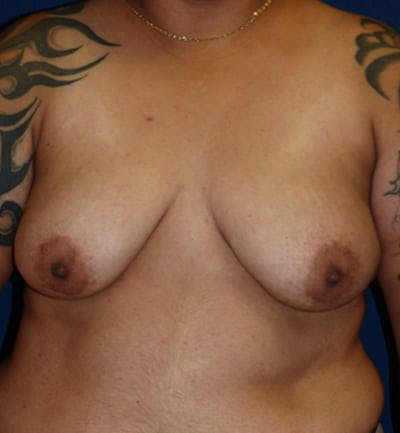 Masculanizing Surgery Gallery - Patient 4862066 - Image 1