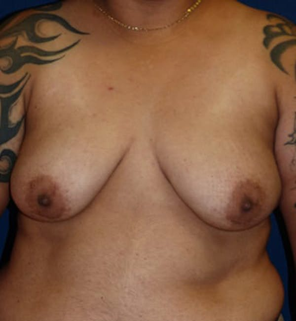 Masculinizing Surgery Gallery - Patient 4862066 - Image 1