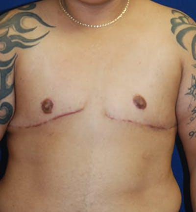 Masculinizing Surgery Gallery - Patient 4862066 - Image 2