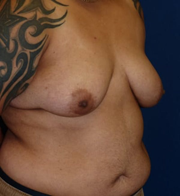 Masculinizing Surgery Gallery - Patient 4862066 - Image 3