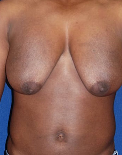 Masculanizing Surgery Gallery - Patient 4862067 - Image 1