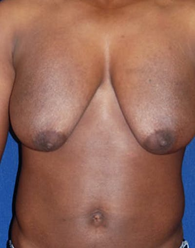 Masculinizing Surgery Gallery - Patient 4862067 - Image 1
