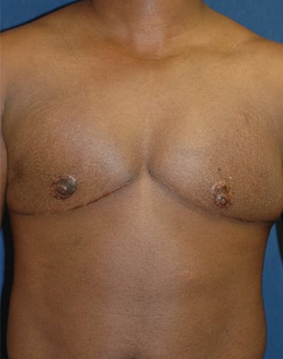 Masculanizing Surgery Gallery - Patient 4862067 - Image 2