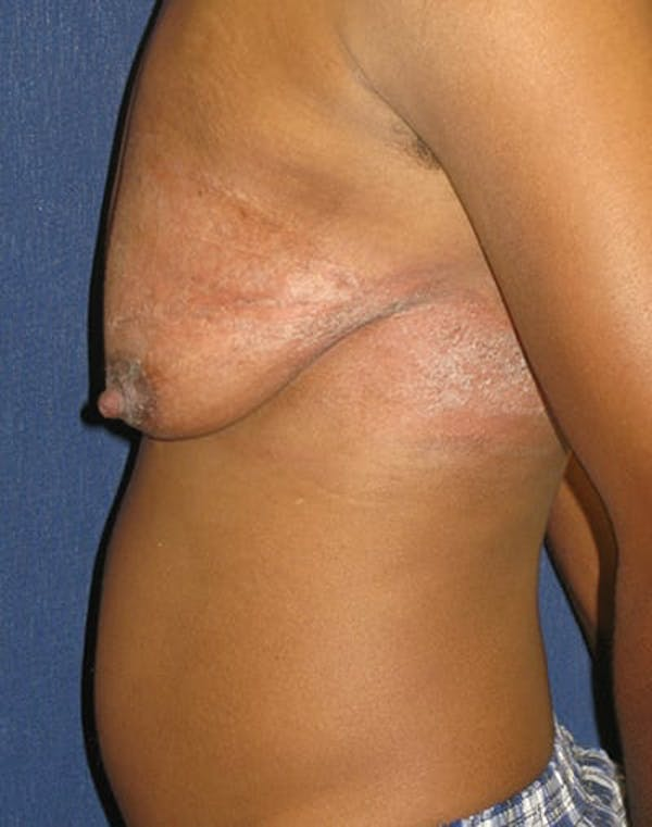 Masculinizing Surgery Gallery - Patient 4862067 - Image 2
